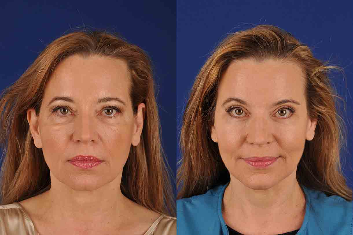 Non-surgical Brow Lift, Shapiro Plastic Surgery