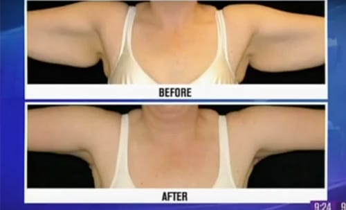 Arm Lift, Shapiro Plastic Surgery & Skin Klinic
