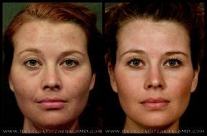 Sculptra before and after results