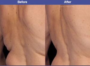 Coolsculpting by dr shapiro