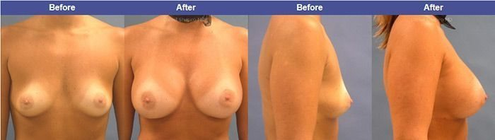 breast-enhancement-with-drshapiro