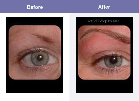 Permanent Makeup Wake Up Looking