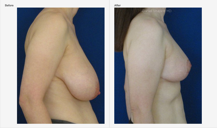 Reduction Mammoplasty