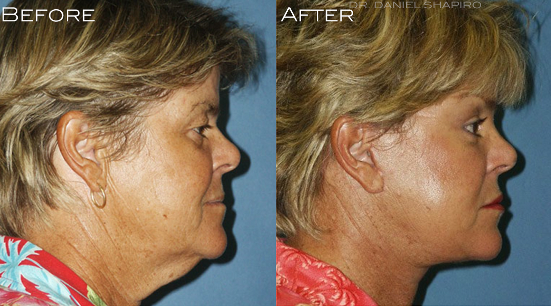 Dr. Shapiro can erase your turkey neck with a facelift!