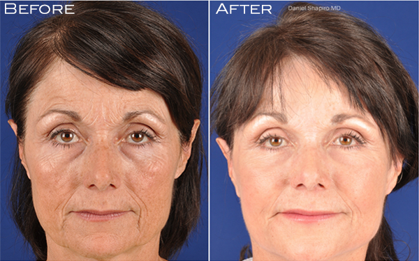 Facial Rejuvenation with GenXLift