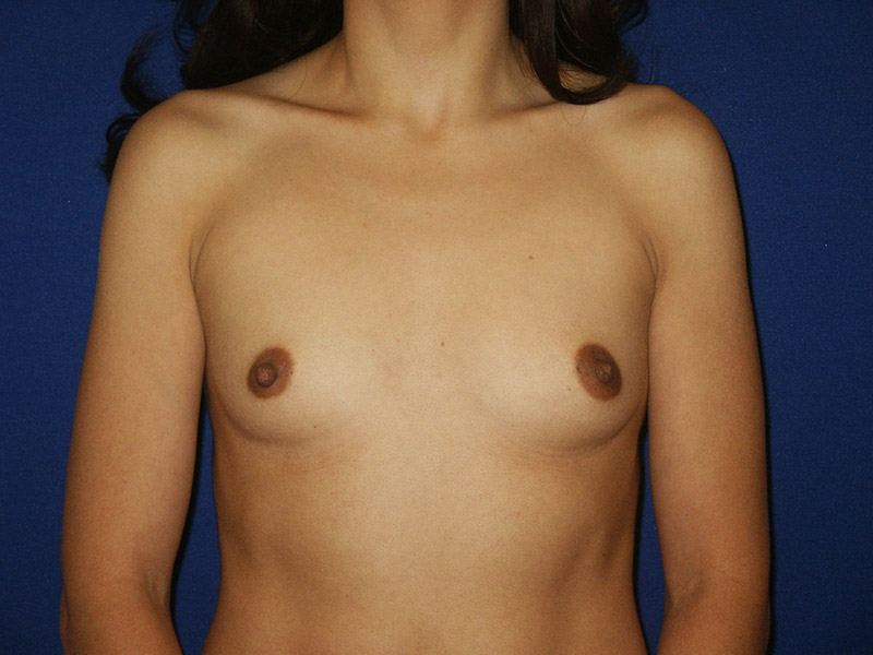 Breast Augmentation, Shapiro Plastic Surgery