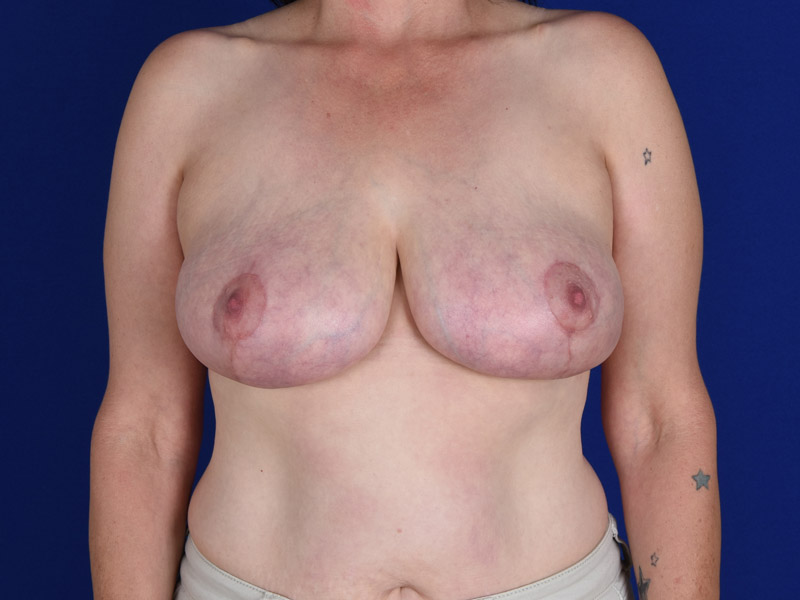 Breast Reduction, Shapiro Plastic Surgery